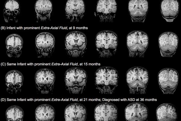 MRI autism
