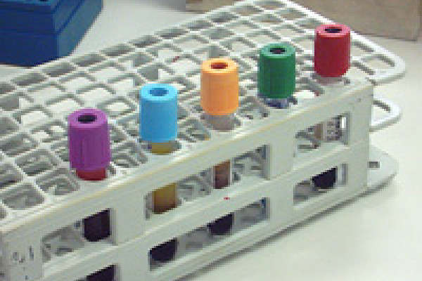 A range of vacutainer tubes containing blood samples