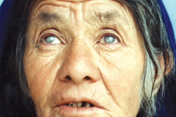 Bilateral cataract in an Afghan woman (pupils dilated)