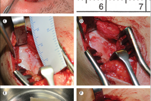 A, B) Harvesting of a cartilage biopsy from the patient, under local anaesthesia. (C) Exposure of the full thickness cartilage defect of the lateral femoral condyle via mini-arthrotomy. (D) Refreshing of the cartilage lesion to remove the damaged...