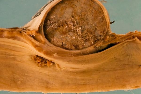 Oesophageal diverticulum