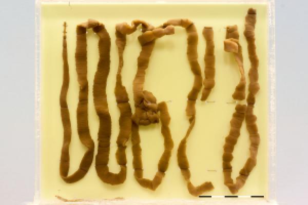 Tapeworm (Taenia species)