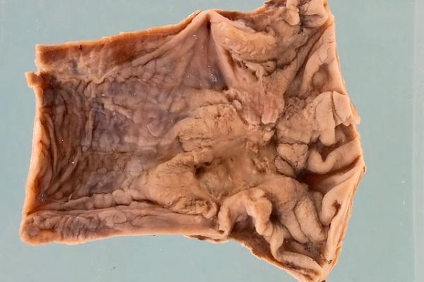 Adenocarcinoma of the oesophagus