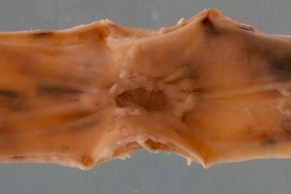 Barrett's oesophagus with adenocarcinoma