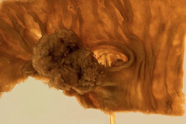 Duodenal adenoma