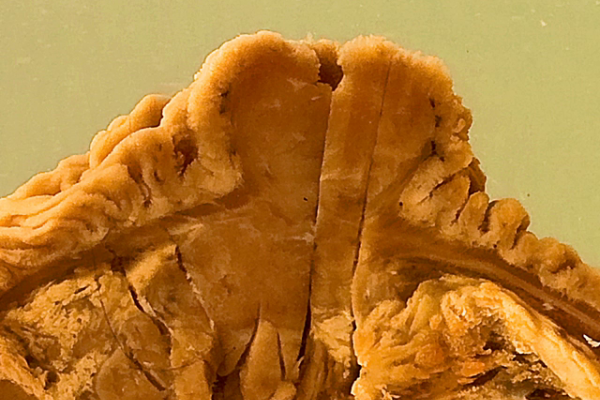 Endocrine cell tumour (Carcinoid) of the Ampulla of Vater