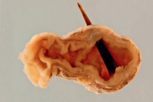 Meckel's diverticulum perforation by tomato skin