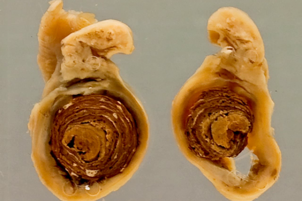 Appendicitis (faecolith)