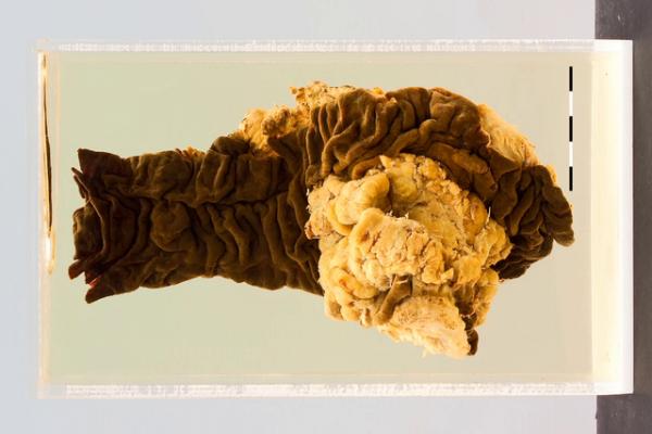 Caecal adenocarcinoma