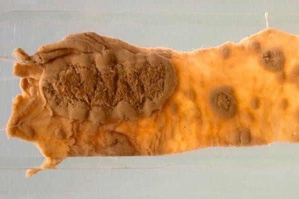 Typhoid ulceration (Ileum)