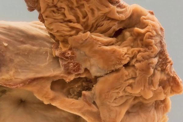 Colo-vesical fistula