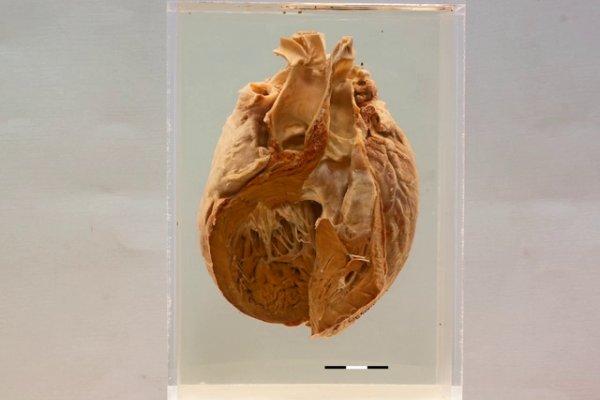 Heart Uni-ventricle