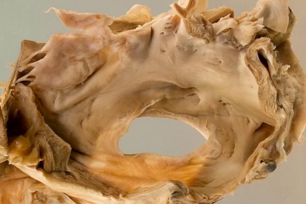 Atrial septal defect x2