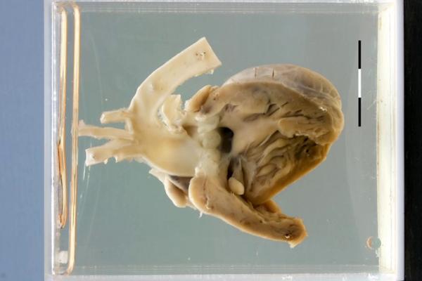Truncus arteriosus with VSD
