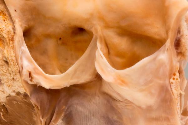 Congenital bicuspid aortic valve