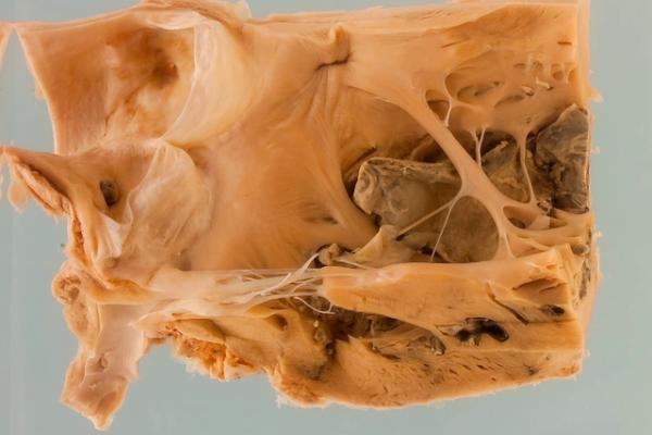 Sequelae of myocardial infarction