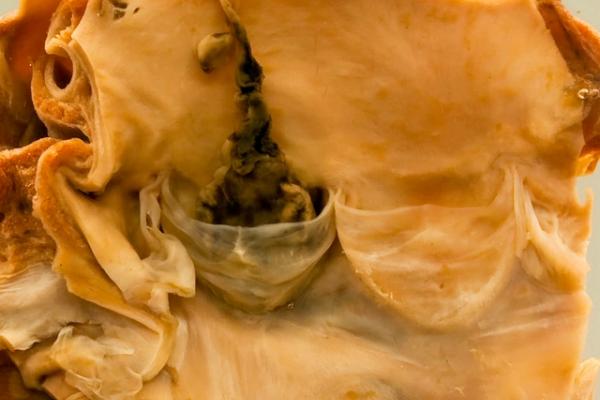 Propagating coronary artery thrombosis