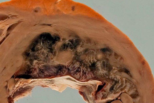 Acute myocardial infarction with mural thrombus