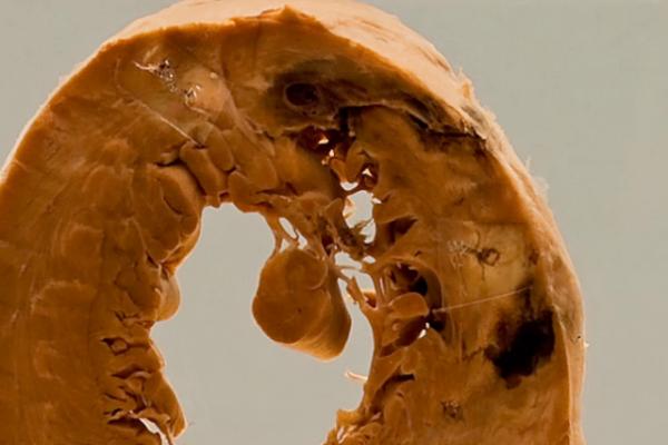 Cardiac rupture following infarction