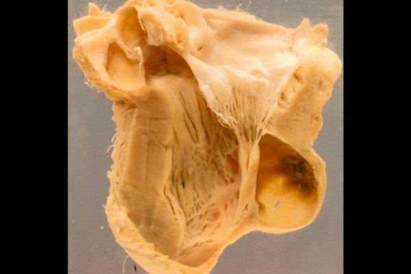 Left ventricular aneurysms