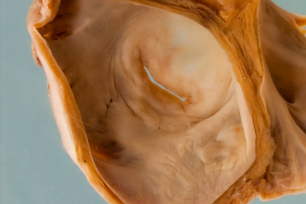 Mitral stenosis due to chronic rheumatic heart disease