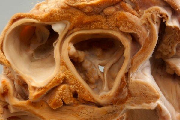 Aortic stenosi due to presumed chronic rheumatic heart disease