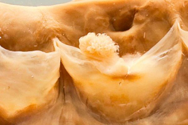 Polypoid lesions of the cardiac valves