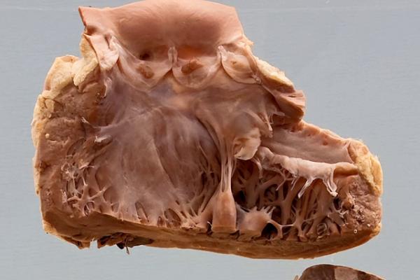 Nonbacterial thrombotic endocarditis (Marantic)