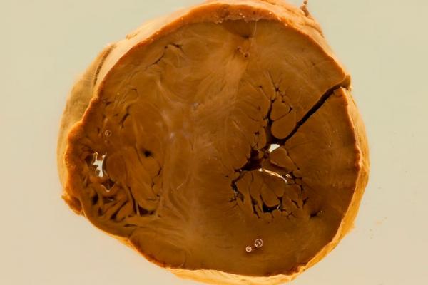 Cardiac manifestations of Von Gierke's disease