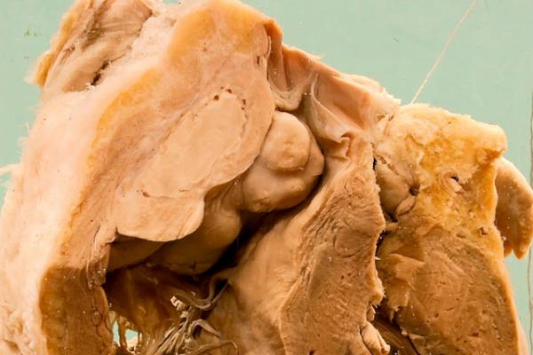 Syphilitic gumma of the right ventricle
