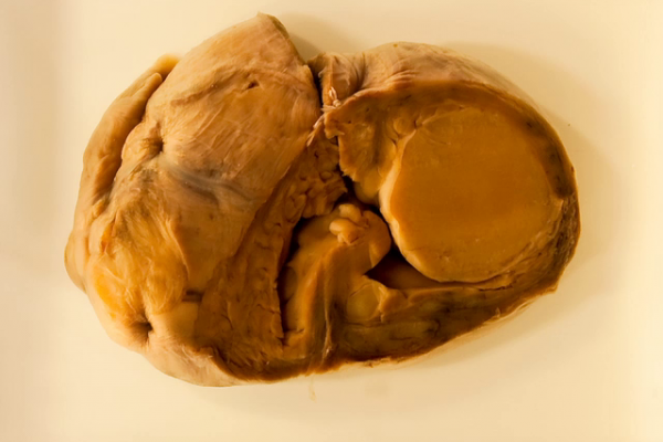 Congenital rhabdomyoma