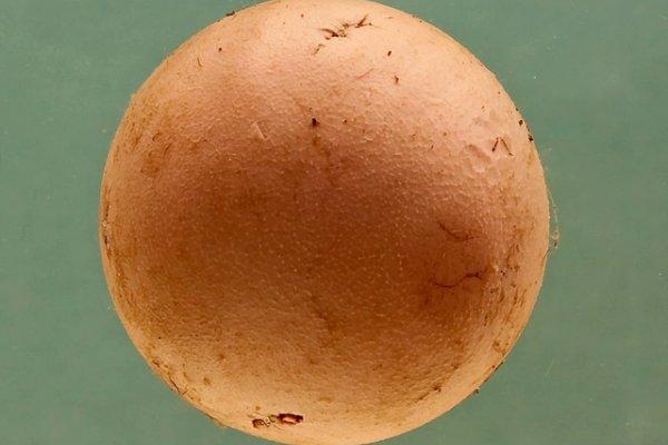 Ball thrombus
