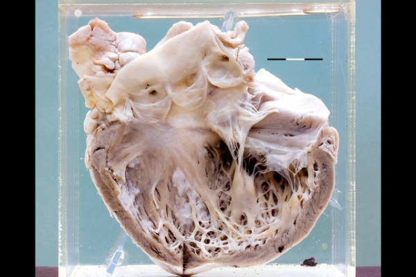 Heart in carcinoid syndrome
