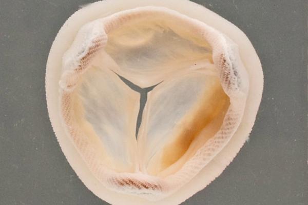 Porcine heterograft valve