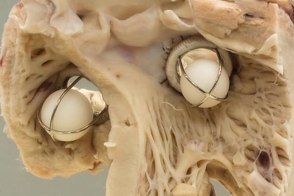 A montage of cardiac valves