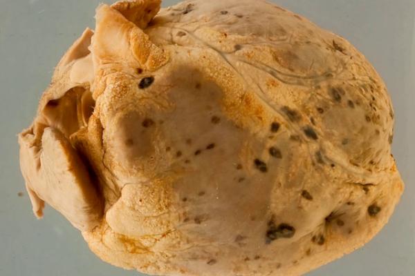 Pericardial leukaemic deposits