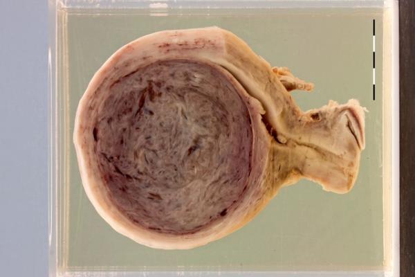 Leiomyoma variants (x3)