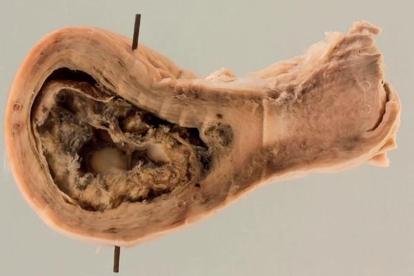Air embolism following laparoscopy