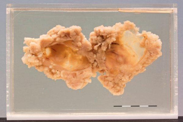 Serous papillary carcinoma of the ovary