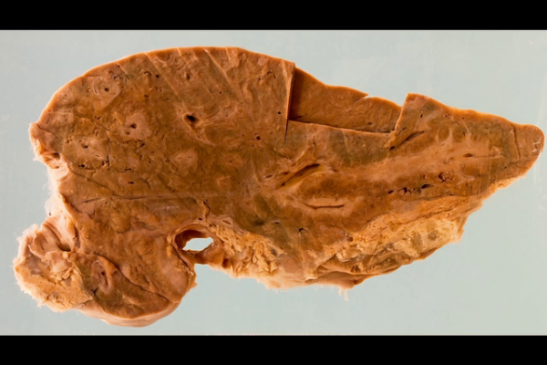 Liver with 'pipe stem fibrosis' due to schistosomiasis