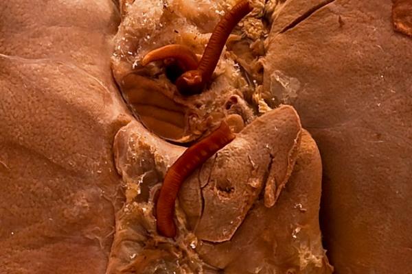 Ascaris lumbricoides (Liver)