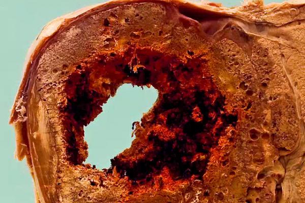 Alveolar hydatid disease (Echinococcus multilocularis)