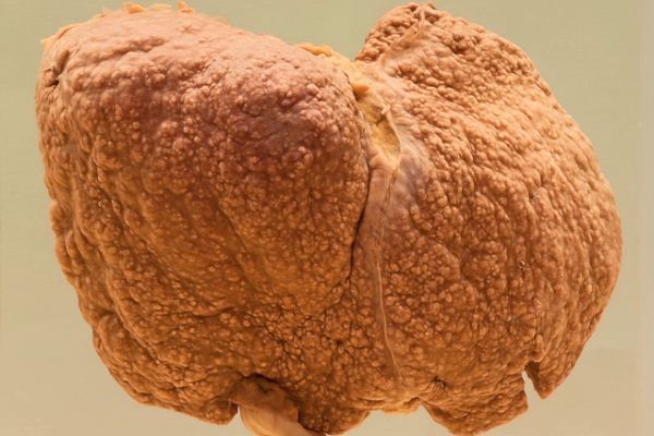 Micronodular cirrhosis