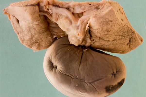 Torsion of the gallbladder