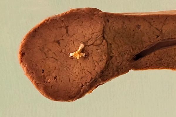 Liver cell adenoma