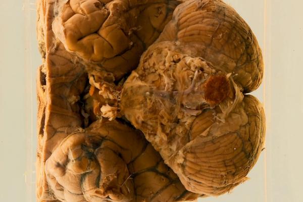 Pseudomonas meningitis following leucotomy