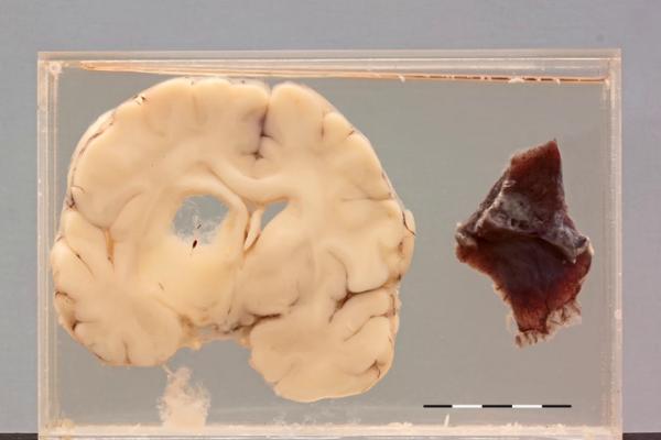 Cryptococcal toruloma of the brain