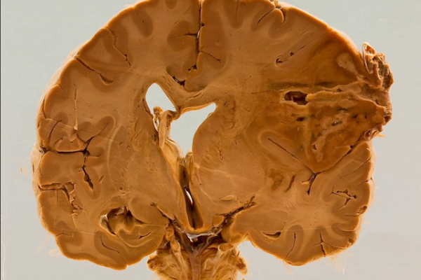 Actinomycotic cerebral abscess