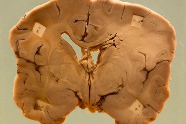 Brain abscess (fungal)