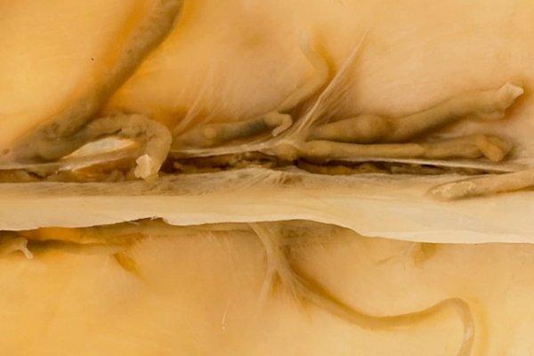 Sagittal sinus thrombosis